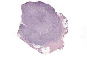 Resource: Nowotwór złośliwy skóry - czerniak