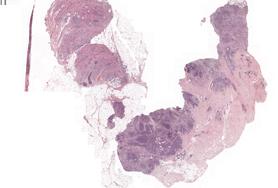 Resource: Rak gruczołu piersiowego
